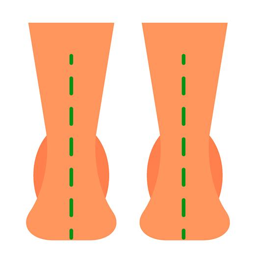 Nevtralno stopalo
