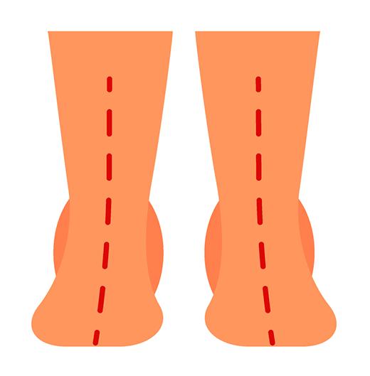 Prekomerna pronacija stopala