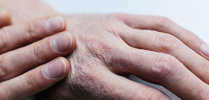 9 nasvetov, kako poskrbeti za suho kožo